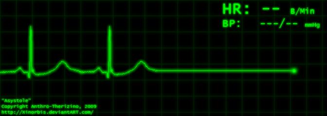 Elettroencefalogramma piatto
